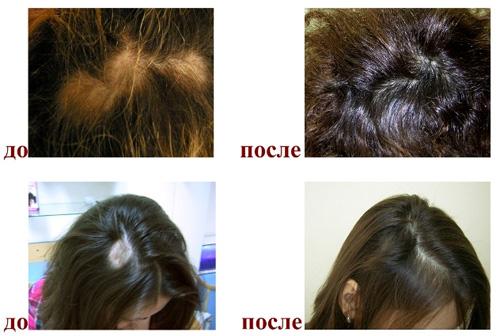 Сатура роста для волос